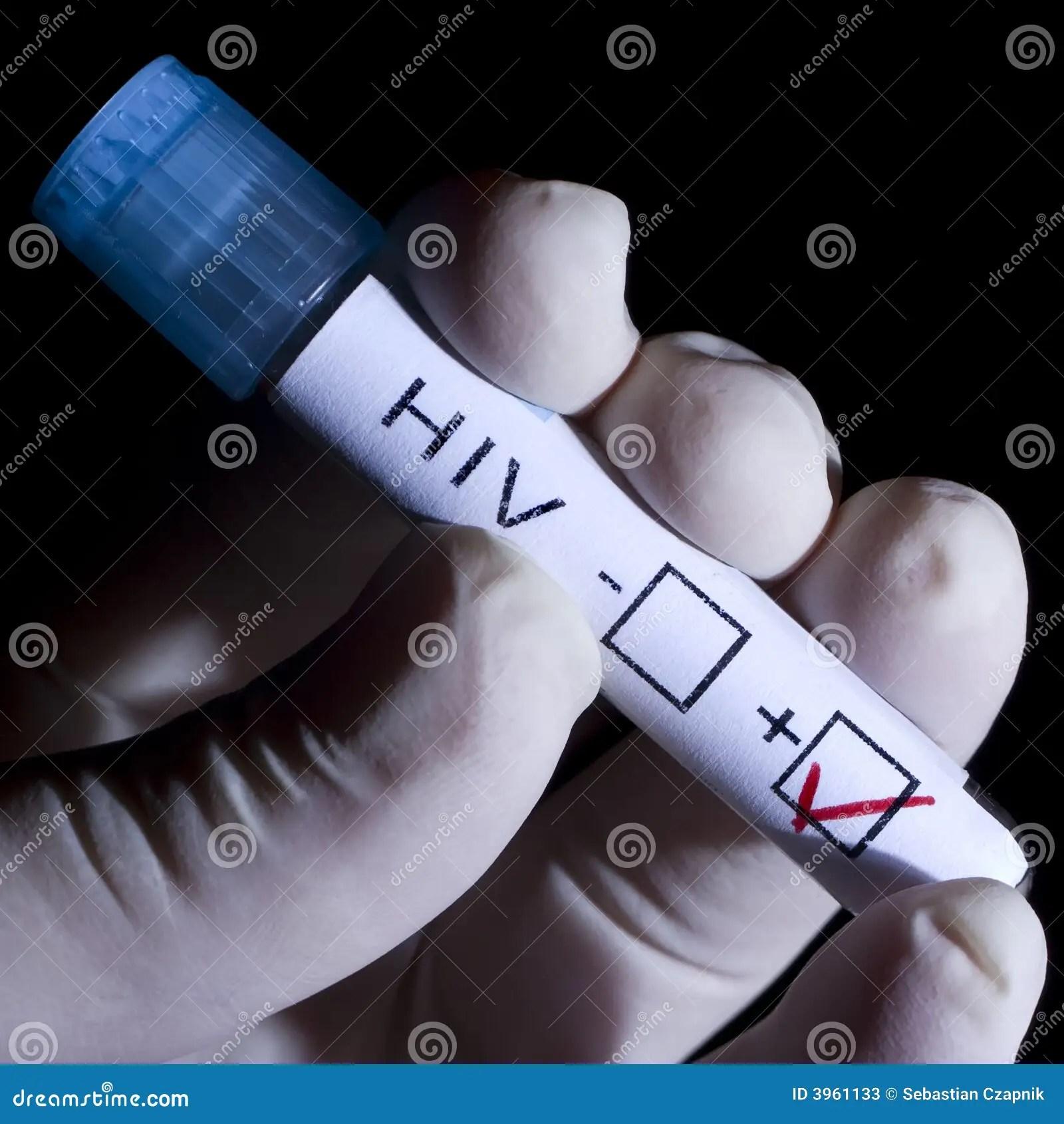 Hiv Positive Stock Photos