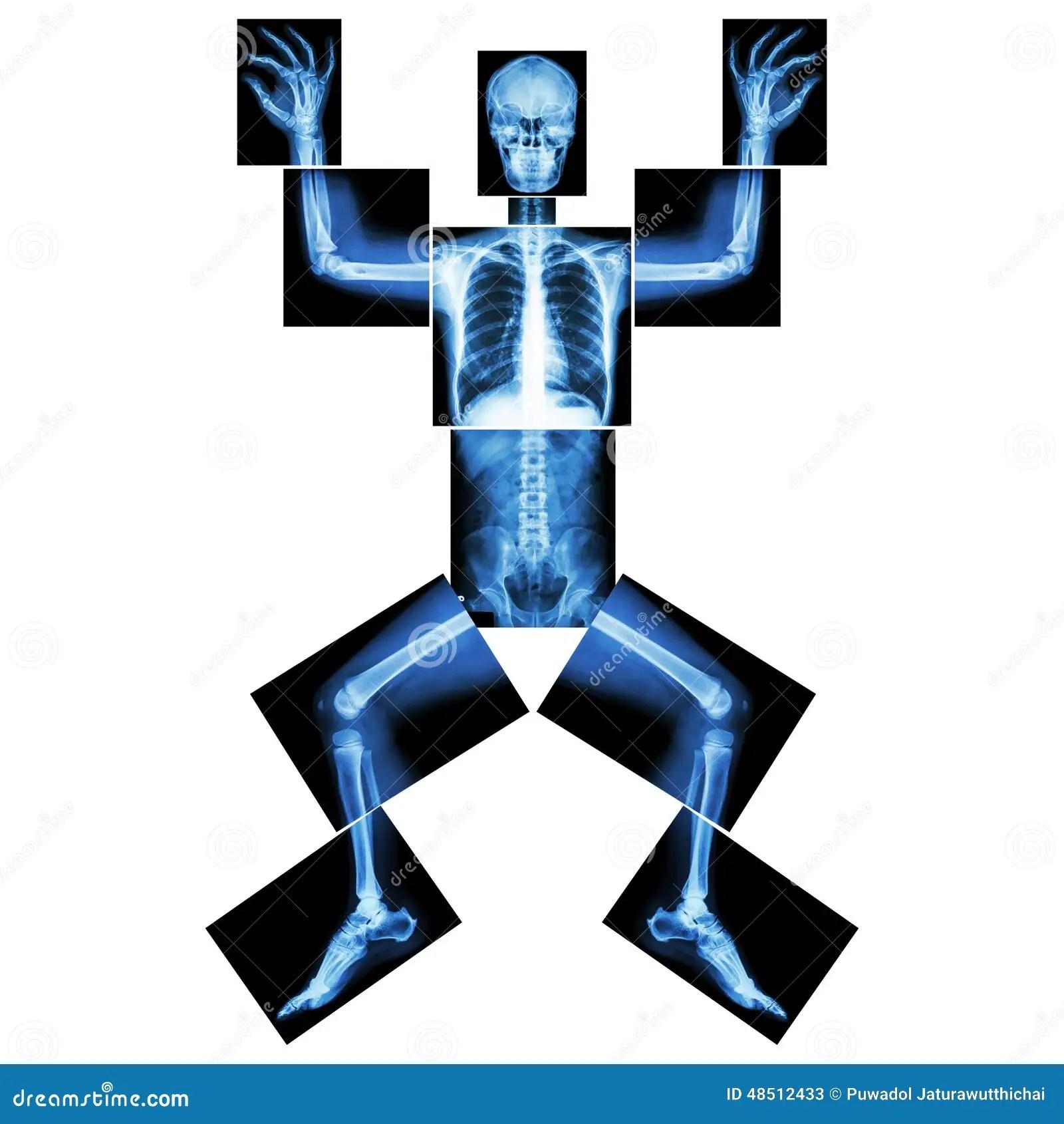Jigsaw Human X Ray Whole Body Head Skull Face Neck
