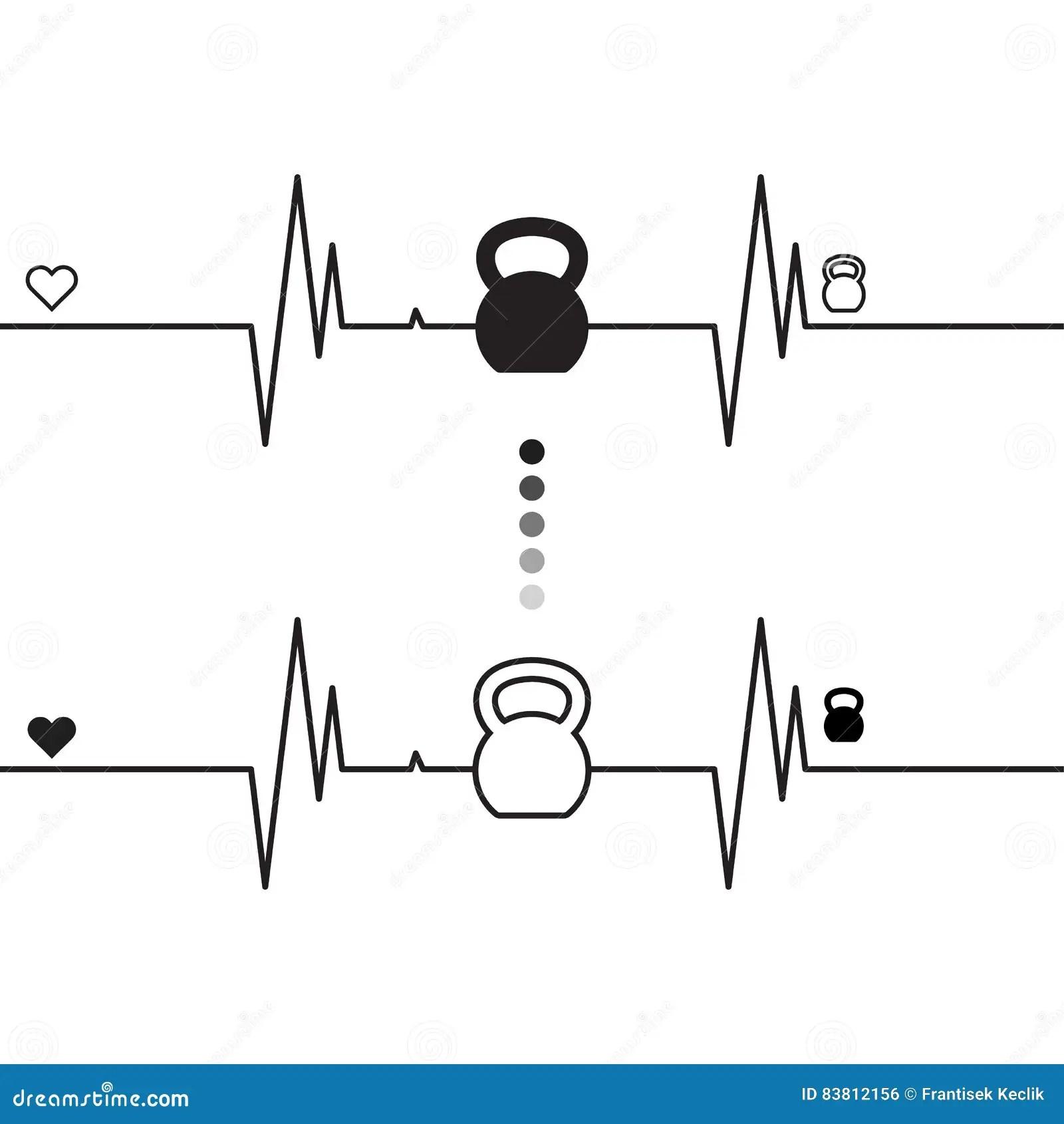 ecg heart diagram