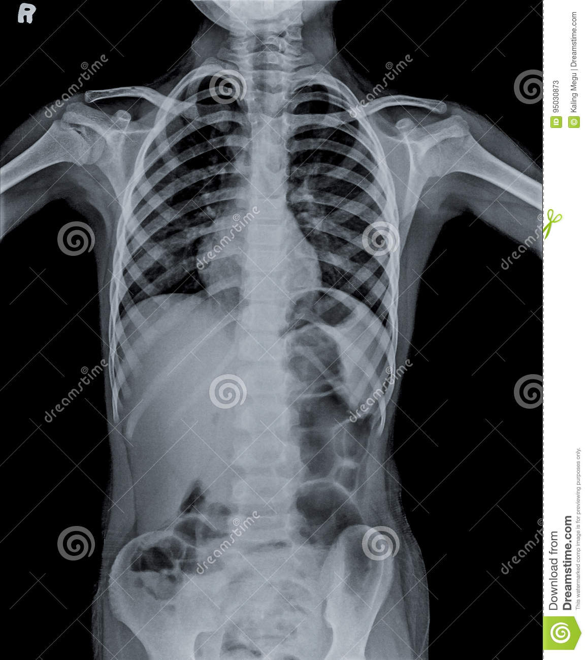 Normal Chest X Ray Of Human Child Stock Image