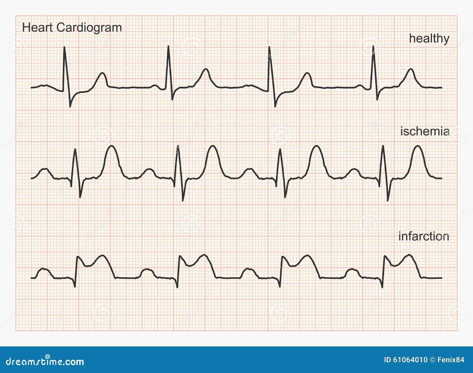 Onde Del Cardiogramma Del Cuore Illustrazione Vettoriale