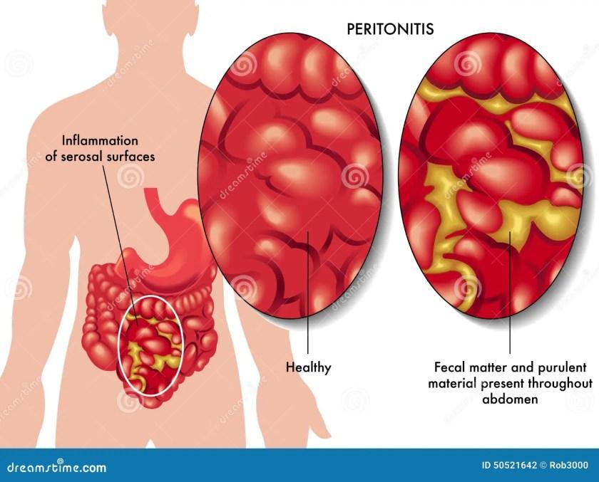 """""""Peritonitis"""" ile ilgili görsel sonucu"""