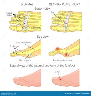 Plantar Plate Tear Hammer Toe Stock Vector  Illustration