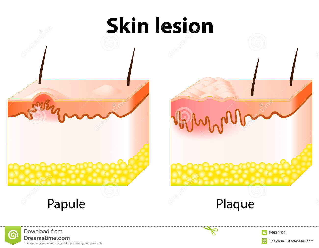 Skin Lesion Stock Vector Illustration Of Human Care