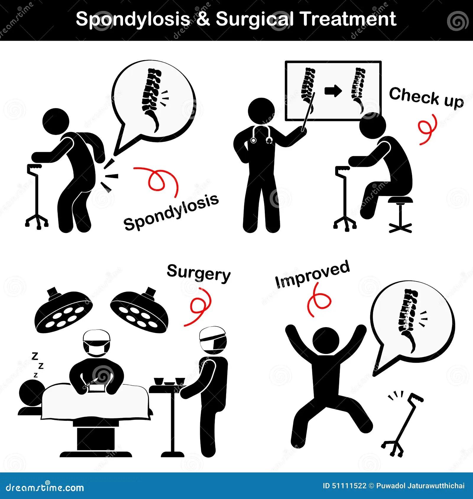 Spondylosis En Van Spondylolisthesis En Van De Operatie Pictogram De Oude Mens Lijdt Aan Lage
