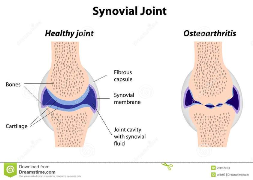 Synovial joint structure stock vector. Illustration of ...