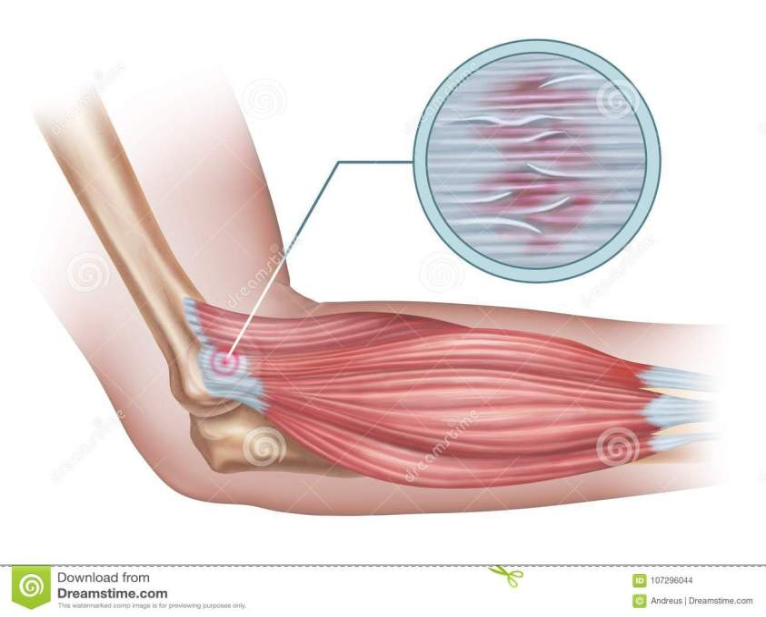 Lateral epicondylitis stock illustration. Illustration of ...