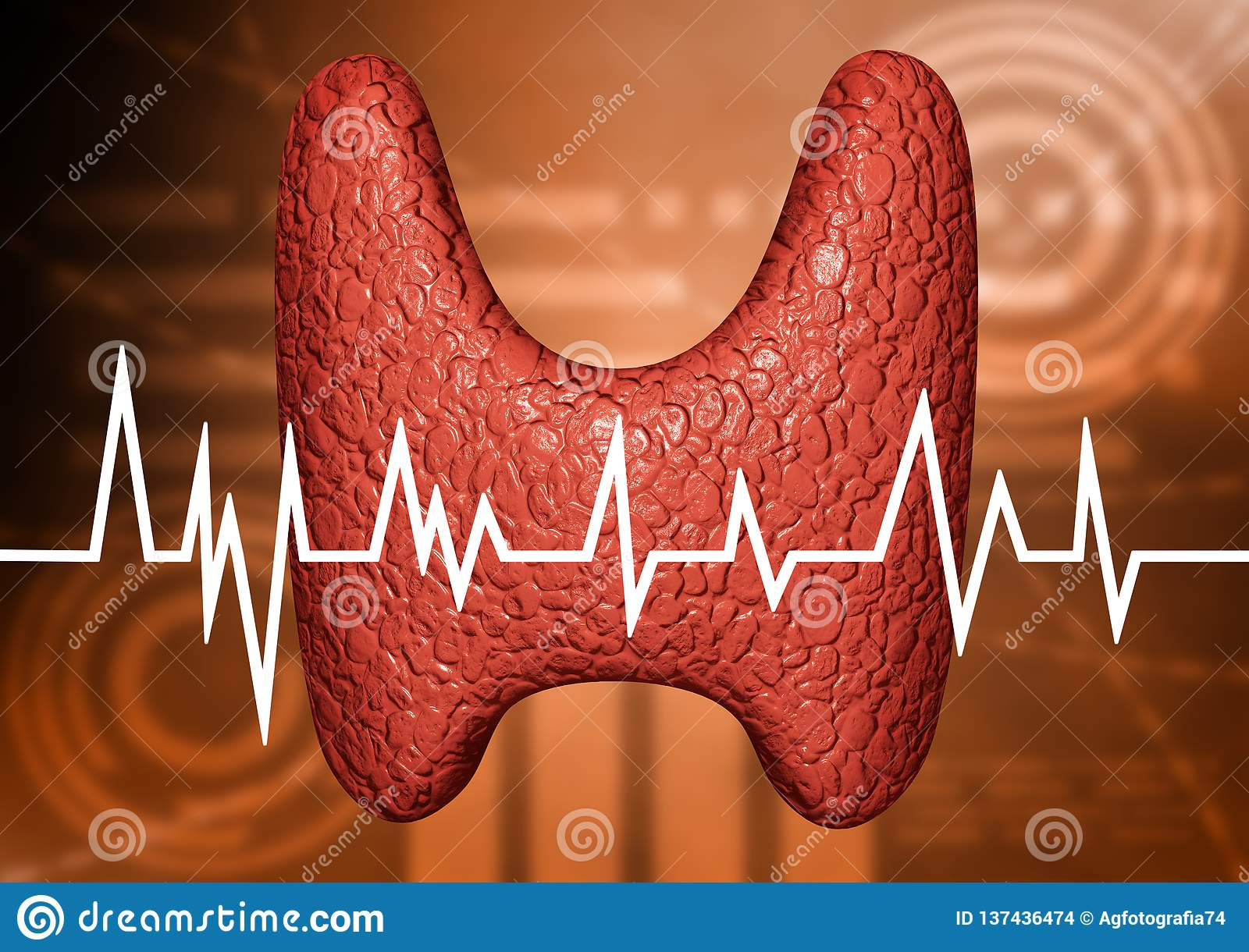 Thyroid Glandyzed In Clinical Examination Of The