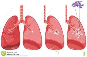 Tuberculosis In Human Lungs Cartoon Vector | CartoonDealer #73719353