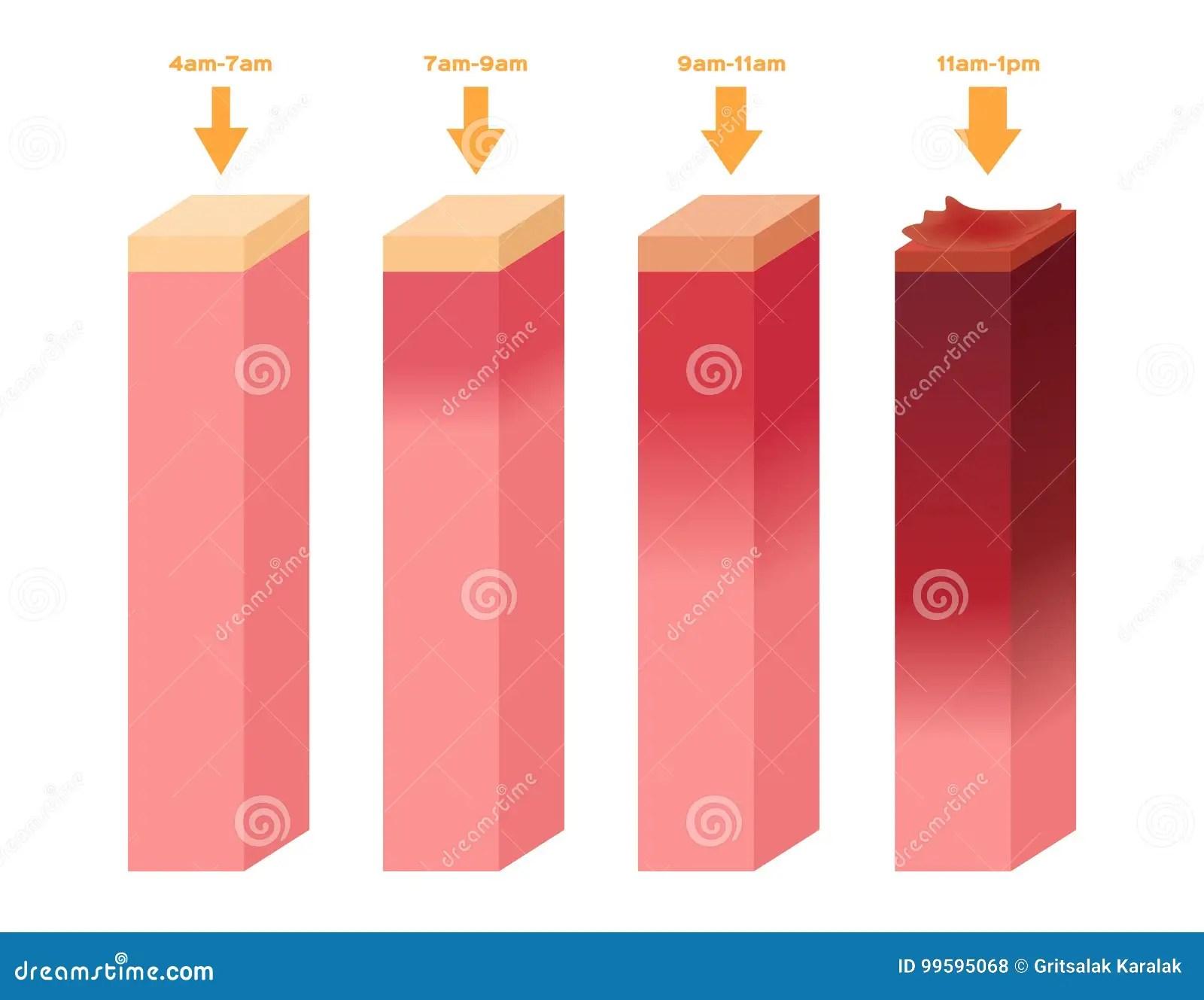 Uv Index Det Infographic Av Mansklig Hud For Ultraviolett Brannskada Fr N 4am