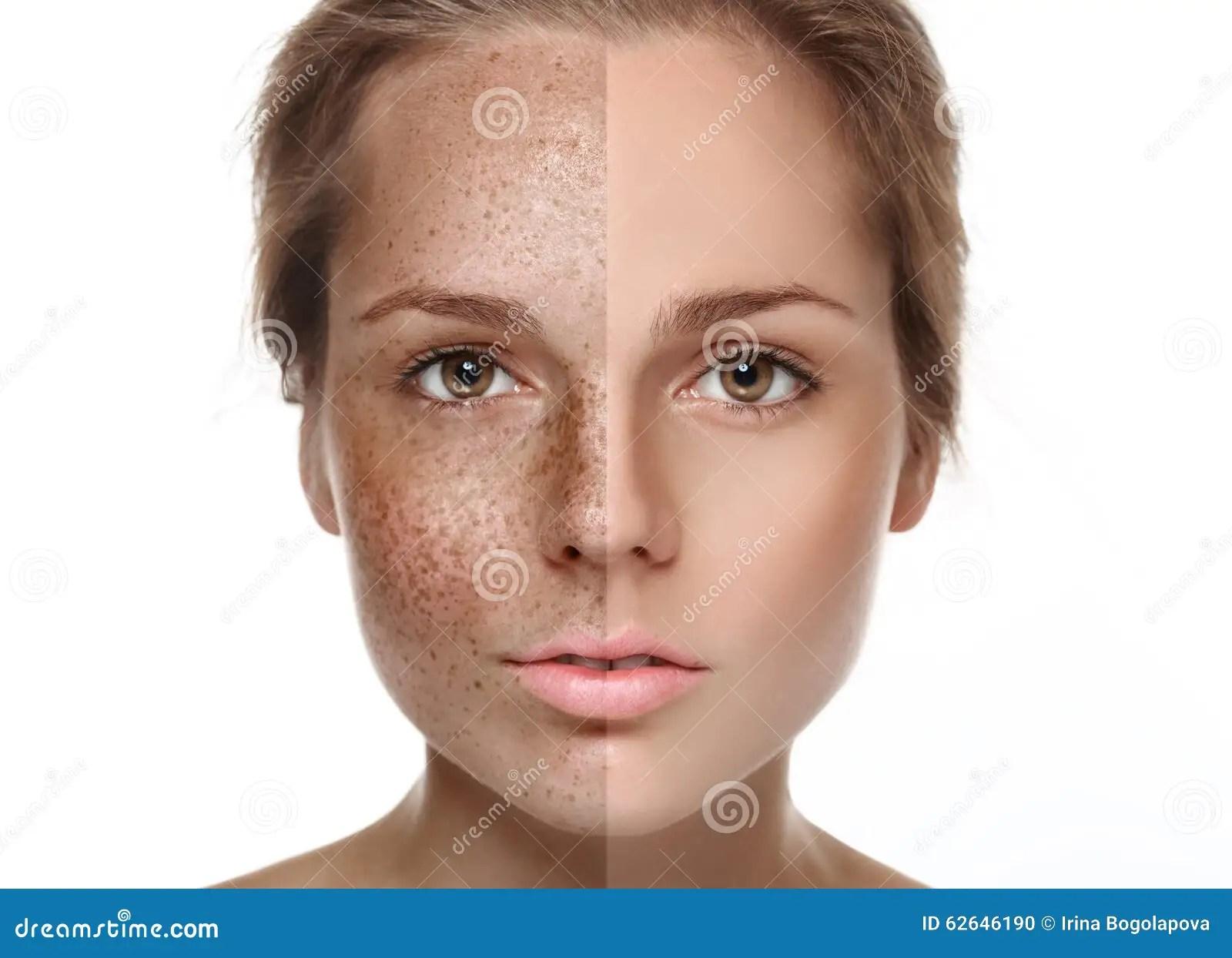 Woman Freckle Half Face Happy Young Beautiful Portrait