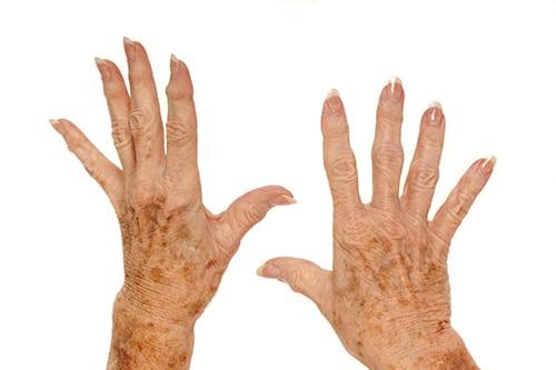 Celastrol in Thunder God Vine May Help to Prevent Bone Damage in Rheumatoid Arthritis