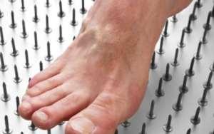 Thunder God Vine and Diabetic Neuropathy