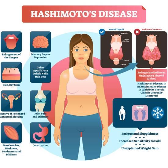 hashimoto symptoms