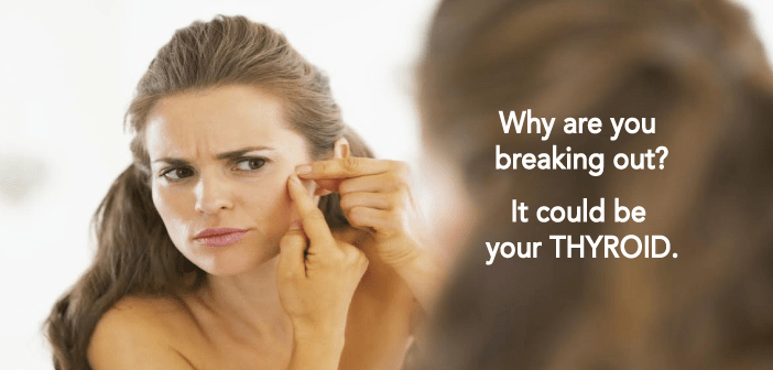 Thyroid-Health-Can-Influence-the-Appearance-of-Your-Skin