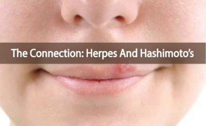 Herpes-Rash-And-The-Connection-To-Hashimoto's-Thyroiditis