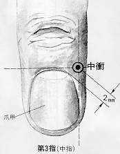 Carrefour du médius, 中衝 zhōngchōng, est le neuvième point du méridien maître du cœur.