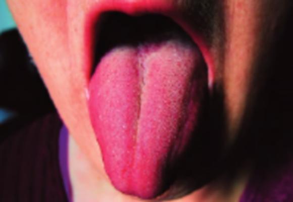 Langue raide