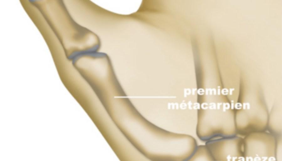 Illustration du premier métacarpien et de l'os trapèze
