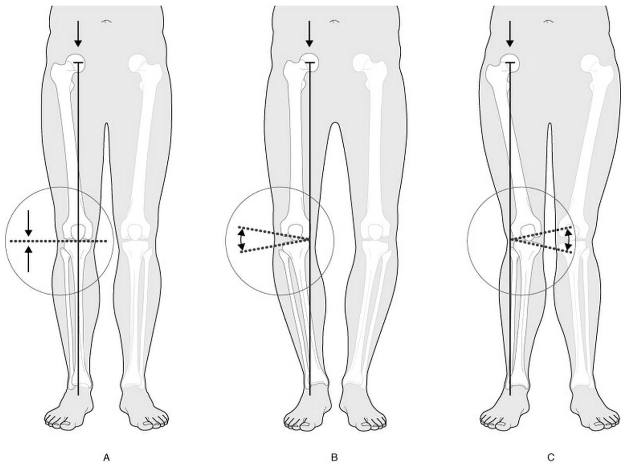 Syndrome de la bandelette de Maissiat causé par le frottement répétitif de la bandelette ilio-tibiale sur le bord supéro-externe