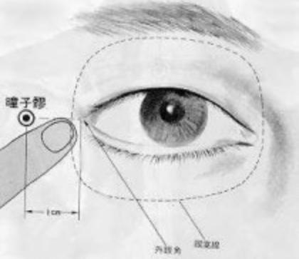 Creux de la pupille est le premier point du méridien de la vésicule biliaire