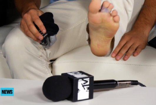 Tyler Posey - broken toe 5