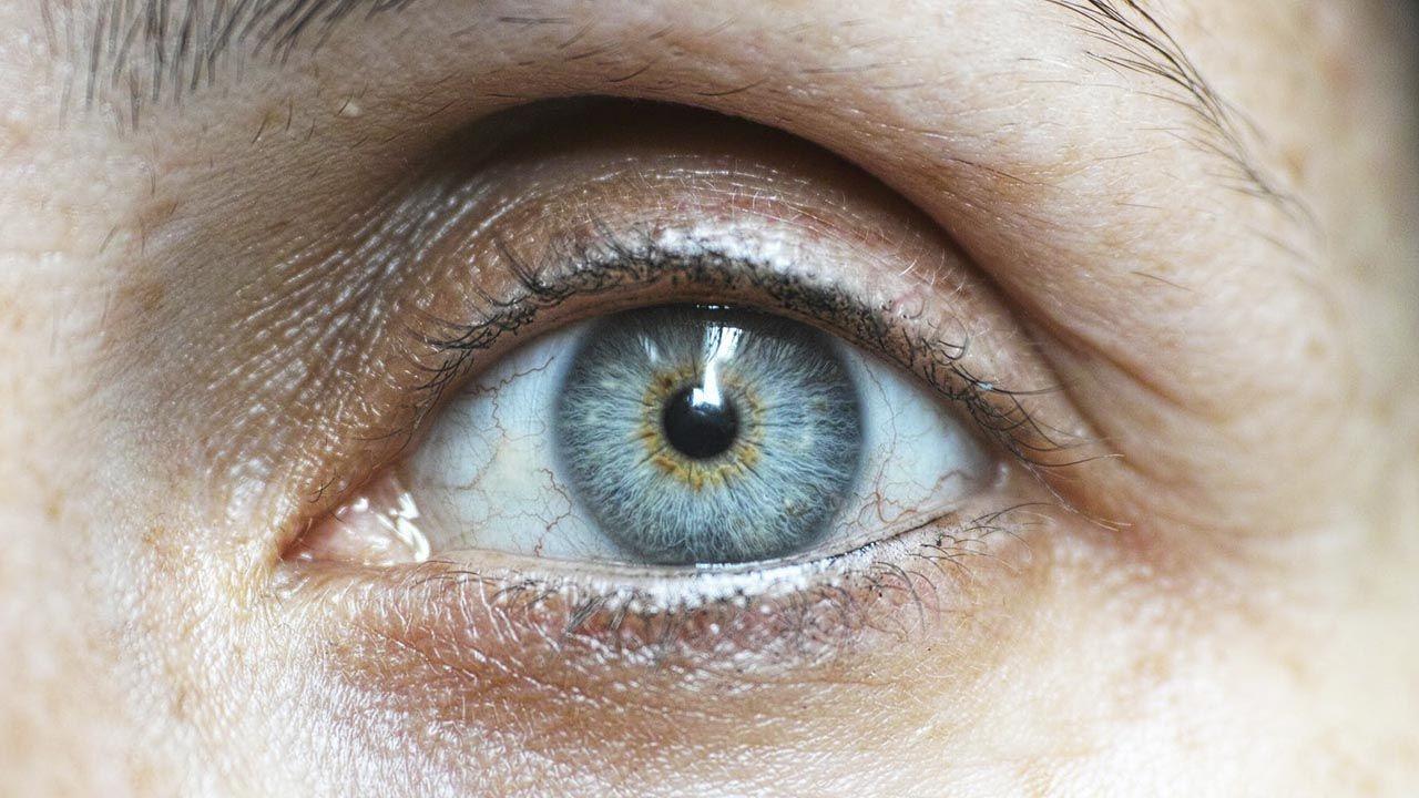 arrugas prematuras en los ojos