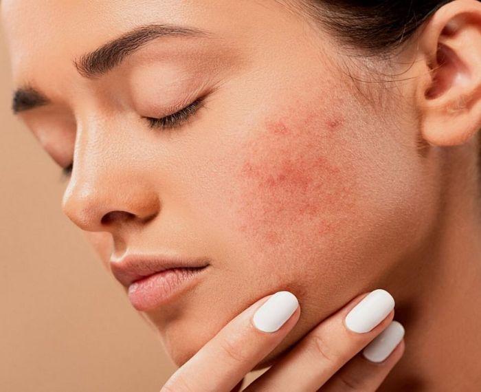 características del acné por estrés