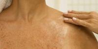 Сухая кожа тела – причины, лечение, рекомендации