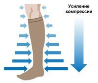 Ciorapi de compresie. Alegerea lenjeriei de compresie pentru varice - Motivele