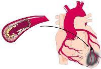Orvosi Leeches előny. Milyen hasznos orvosi pictes a test számára? A LEECH biológiai jellemzői
