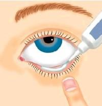 Глазные капли Тобрекс: инструкция по применению для детей и рекомендации родителям. Глазные капли и мазь тобрекс для детей Тобрекс глазные капли инструкция по применению взрослым