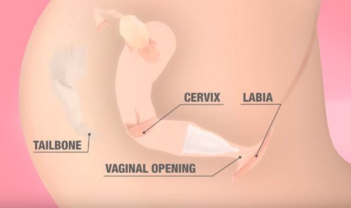how to use a menstrual cup
