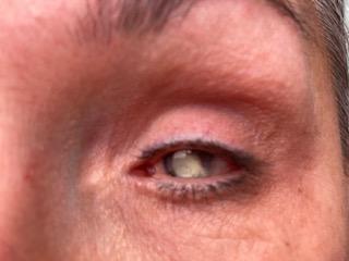 Foto van Debby's linkeroog, waarvan de pupil grijs is, doordat er veel littekenweefsel in het oog zit.