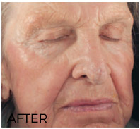 SmartSkin C02 Fractional Resurfacing—After