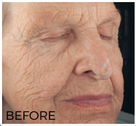 SmartSkin C02 Fractional Resurfacing—Before