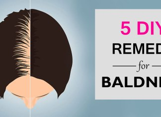 5 DIY to cure baldness. How to regrow hair on bald spot fast. Get rid of baldness in male and female.