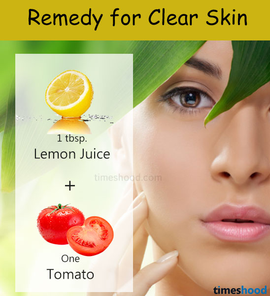 How to get clear skin? Tomato Lemon mask for dark spots, scars. Homemade tips for clear skin.