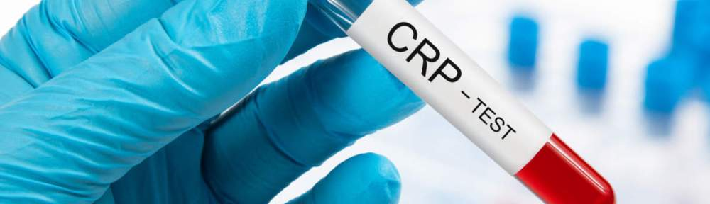 What is a CRP test and who should get it done