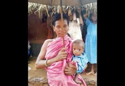 How malnutrition is killing kids of a mineral-rich Odisha tribal village