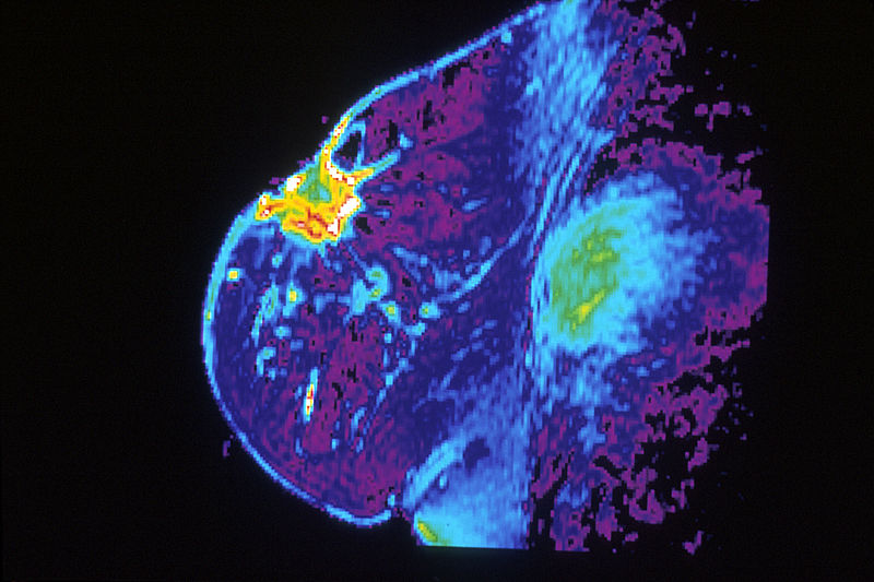 MRI of a breast with cancer. Image courtesy of the National Cancer Institute