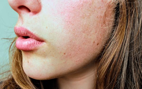 從痘痘位置看你身體的問題