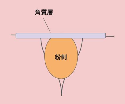 閉鎖性粉刺