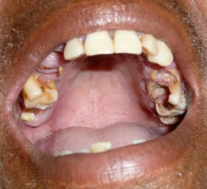 Typical dental condition in Timor