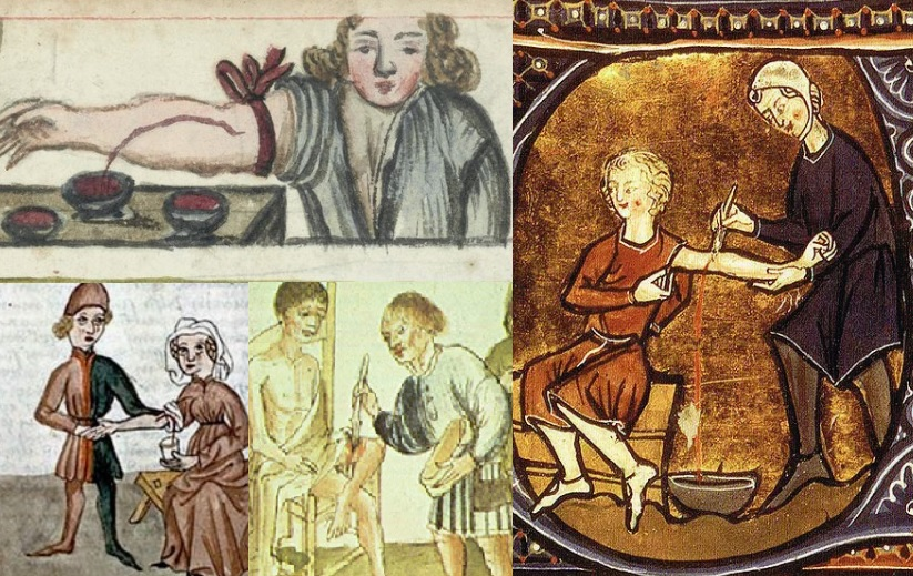 Medieval Bloodletting and the Four Humors