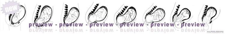 Singleton Birth Process Banner
