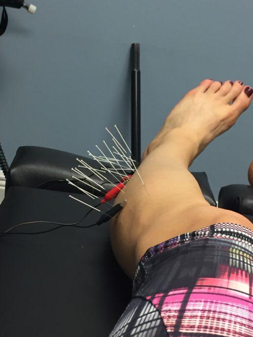tina dry needle