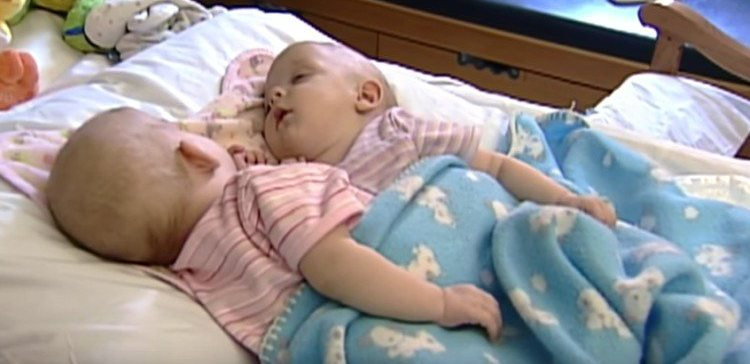 10 years after these conjoined twins were separated.