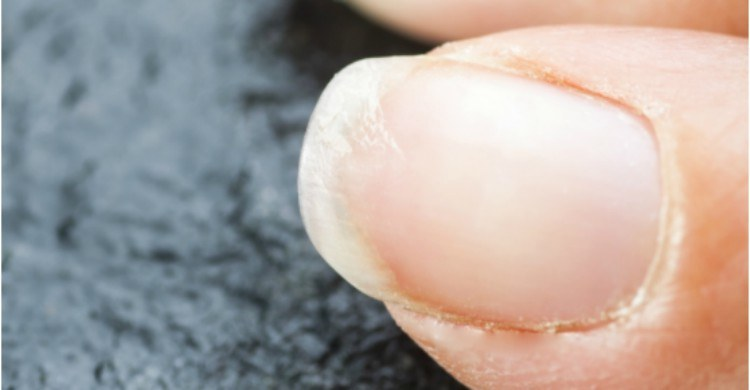 close up image of brittle nails