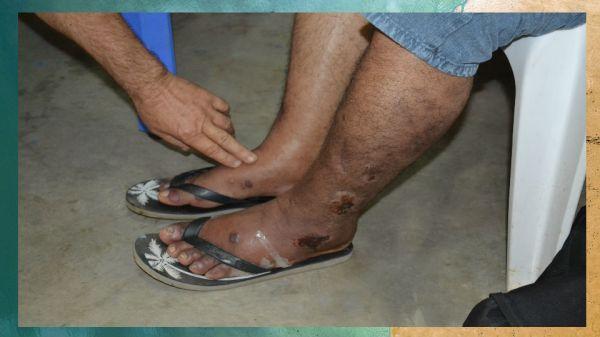 amputación de la pierna